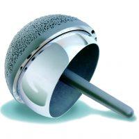 Kapoplastyka z wykorzystaniem implantu BHR to najmniej inwazyjna z dostepnychmetod plastyki stawu biodrowego.