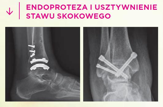 Endoprotezoplastyka stawu skokowego i artrodeza stawu skokowego