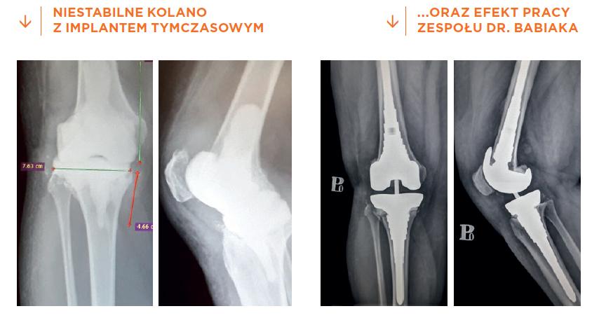 Wszczepienie innowacyjnej rewizyjnej endoprotezy stawu kolanowego